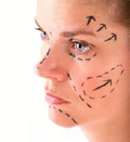 Woman's face marked for cosmetic surgery